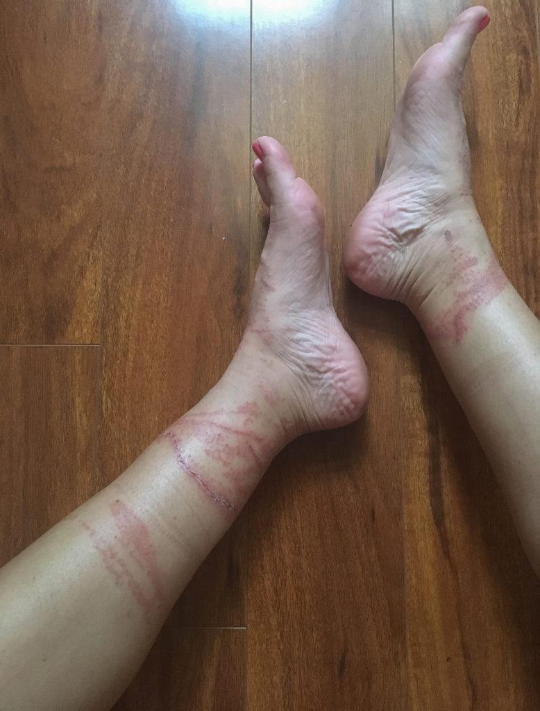 legs-1-3